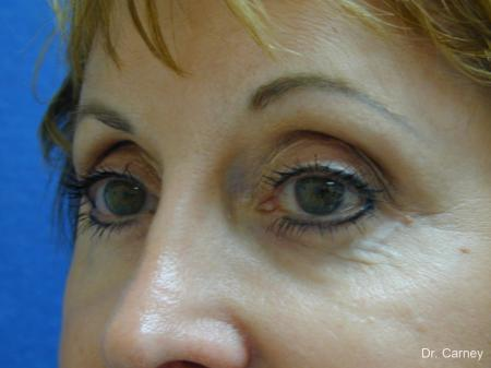 Virginia Beach Brow Lift 1216 -  After Image 3