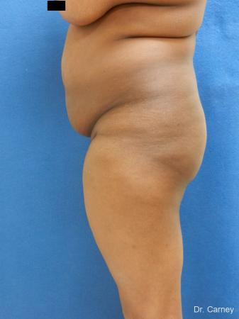 Brazilian Butt Lift: Patient 5 - Before Image