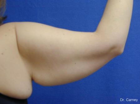 Virginia Beach Brachioplasty 1140 - Before Image 2