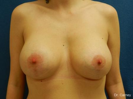 Virginia Beach Combo Procedures Breast 1182 -  After Image 1