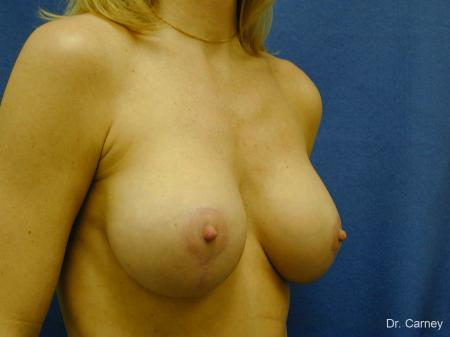 Virginia Beach Combo Procedures Breast 1094 - After Image