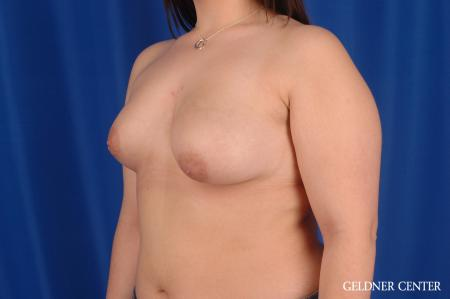 Breast Lift Hinsdale, Chicago 2615 - Before and After Image 5