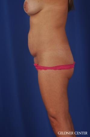 Abdominoplasty: Patient 5 - Before and After Image 3