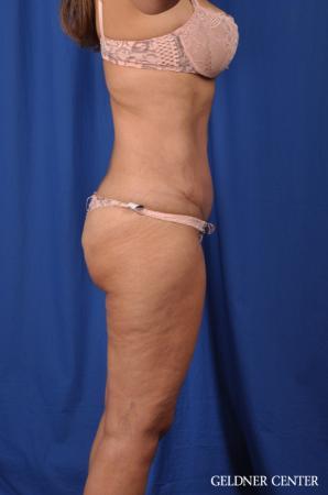 Lipoabdominoplasty: Patient 5 - After Image 3