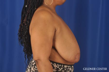 Breast Reduction: Patient 22 - Before Image 2