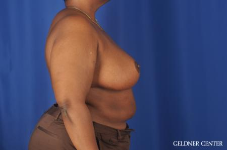 Chicago Breast Reduction 11871 -  After Image 3