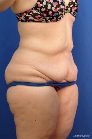 Tummy Tuck: Patient 10 - Before Image 2