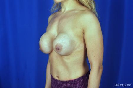 Chicago Breast Lift 2072 - Before and After Image 4