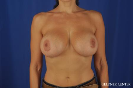 Chicago Breast Augmentation 5475 -  After Image 1