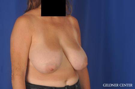 Breast Reduction: Patient 13 - Before Image 3