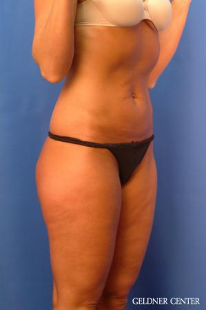 Vaser lipo patient 2624 before and after photos - Before Image 2