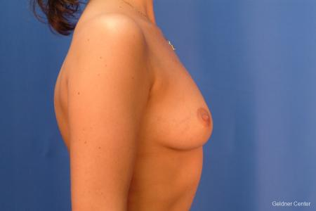 Chicago Breast Augmentation 2432 - Before Image 2