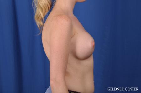 Breast Augmentation: Patient 137 - After Image 2