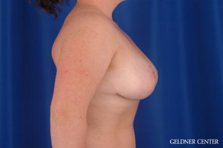 Breast Reduction: Patient 34 - After Image 3