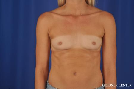Breast Augmentation Hinsdale, Chicago 8619 - Before Image 1