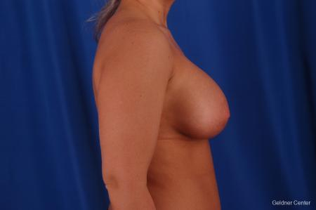 Chicago Breast Augmentation 2633 -  After Image 2