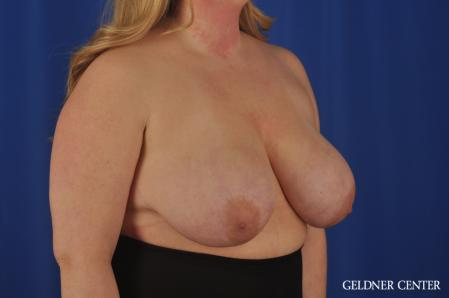 Breast Reduction: Patient 32 - Before Image 2