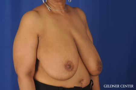 Breast Reduction: Patient 25 - Before Image 2