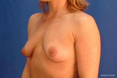 Breast Augmentation Lake Shore Dr, Chicago 2637 - Before and After Image 4