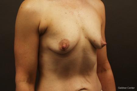 Breast Augmentation Hinsdale, Chicago 2632 - Before Image 3