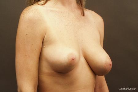 Chicago Breast Lift 2537 - Before Image 3