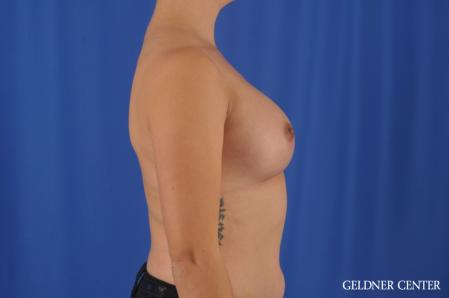 Breast Augmentation: Patient 180 - After Image 3