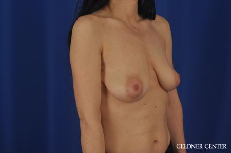 Chicago Breast Augmentation 6655 - Before Image 2