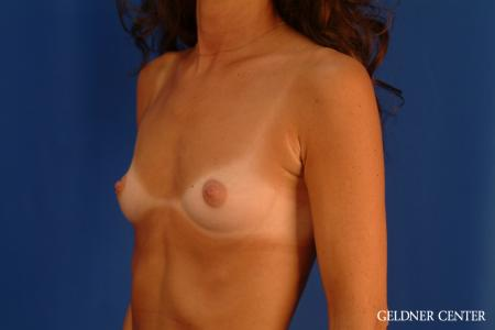 Breast Augmentation: Patient 113 - Before and After Image 4