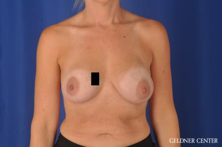Chicago Breast Augmentation 11970 - Before Image 1