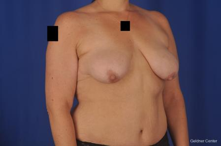 Breast Lift: Patient 18 - Before Image 2