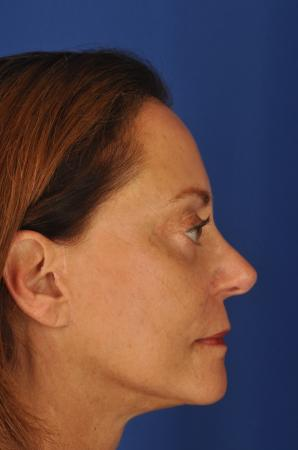 Facelift: Patient 7 - After Image 2