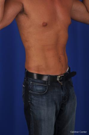 Liposuction For Men: Patient 1 - After Image 2