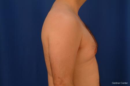 Gynecomastia: Patient 4 - Before Image 2