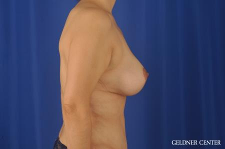 Chicago Breast Lift 8812 -  After Image 2