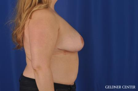 Breast Reduction: Patient 32 - After Image 3