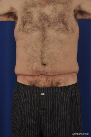 Abdominoplasty-for-men: Patient 3 - Before Image