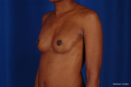 Chicago Breast Augmentation 2293 - Before and After Image 5