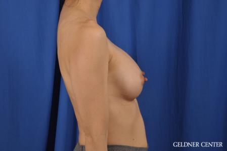 Breast Augmentation: Patient 176 - After Image 3