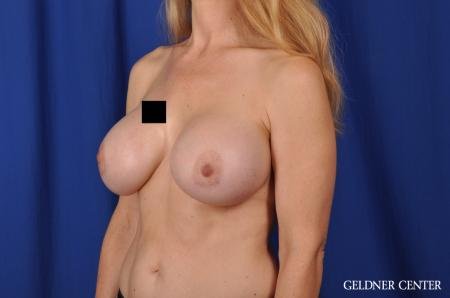 Chicago Breast Augmentation 5467 -  After Image 4