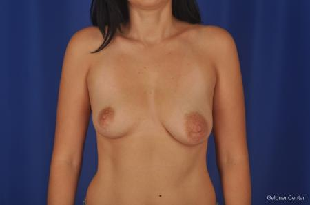 Chicago Complex Breast Augmentation 2306 - Before Image 1