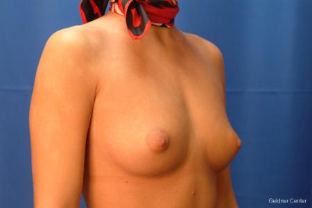 Breast Augmentation Hinsdale, Chicago 2438 - Before Image 3