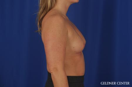 Breast Augmentation Lake Shore Dr, Chicago 5469 - Before Image 3