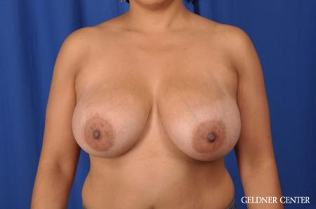 Breast Reduction: Patient 23 - Before Image 1