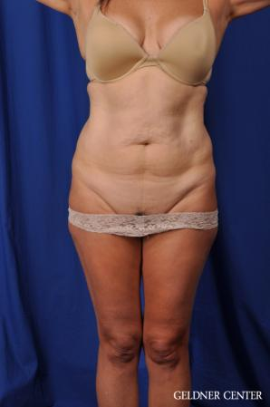 Liposuction: Patient 43 - Before Image 1