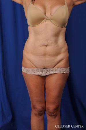 Liposuction: Patient 43 - Before 1