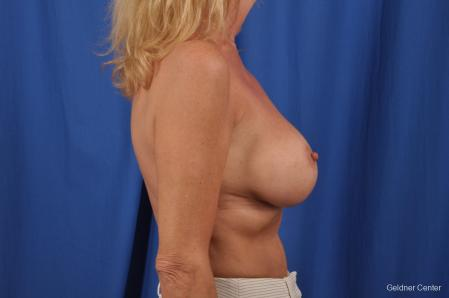 Breast Augmentation: Patient 154 - After Image 2