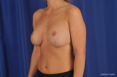 Complex Breast Augmentation Lake Shore Dr, Chicago 2290 -  After Image 3