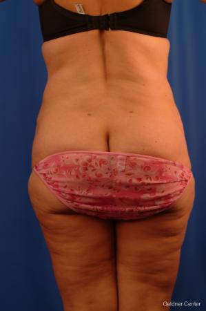 Lipoabdominoplasty: Patient 3 - After Image 4
