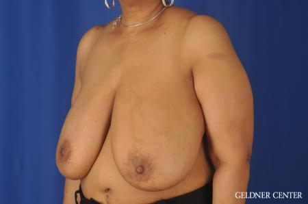 Breast Reduction: Patient 25 - Before Image 4