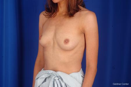Breast Lift Chicago 2296 - Before and After Image 5
